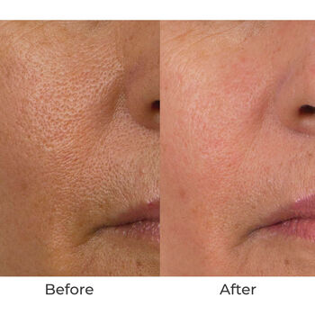Conture Kinetic Skin Toning System with Treatment Serum image number null